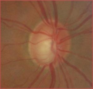 Fond d'œil glaucome